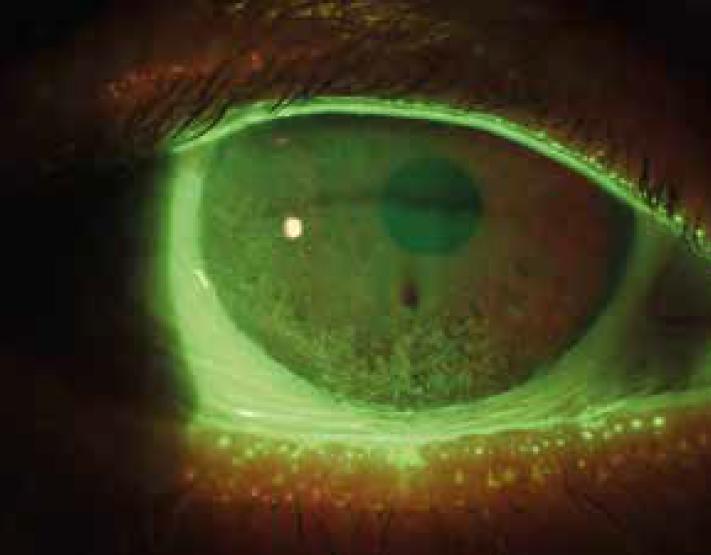 occhio secco diagnosi sintomi cure