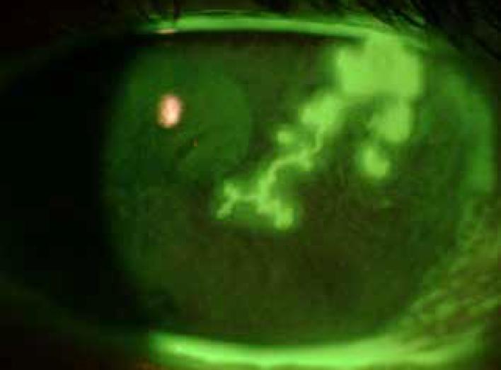 centri di eccellenza cura patologie oculari