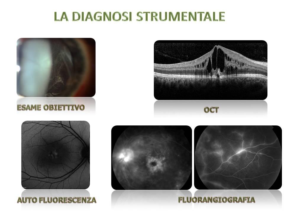 edema maculare nelle uveiti diagnosi sintomi cure