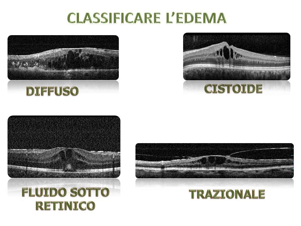 edema maculare nelle uveiti centro uveiti milano