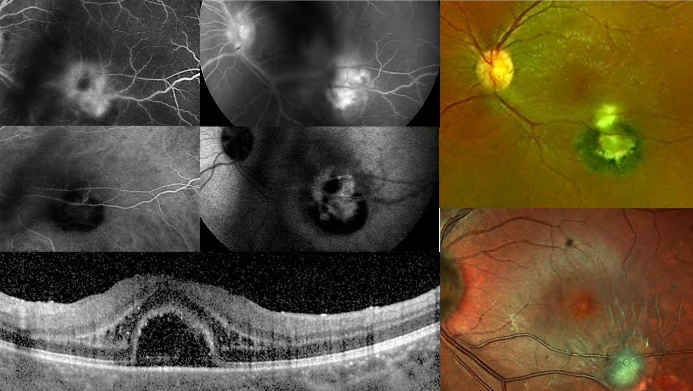 toxoplasmosi oculare cura definitiva