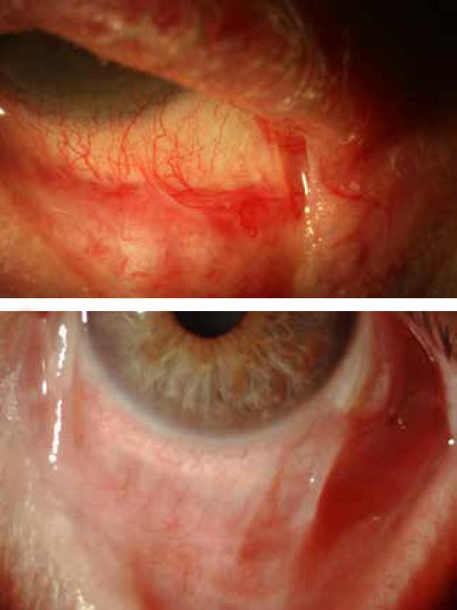 pemfigoide cicatriziale oculare centri di eccellenza a milano