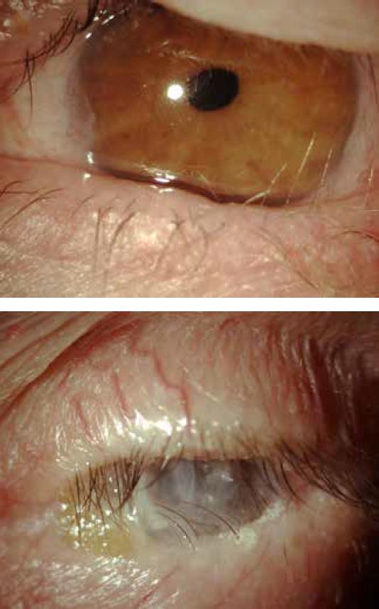 pemfigoide cicatriziale oculare diagnosi sintomi cure