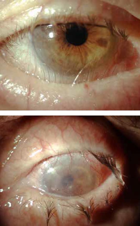 pemfigoide cicatriziale oculare centro specialistico di riferimento